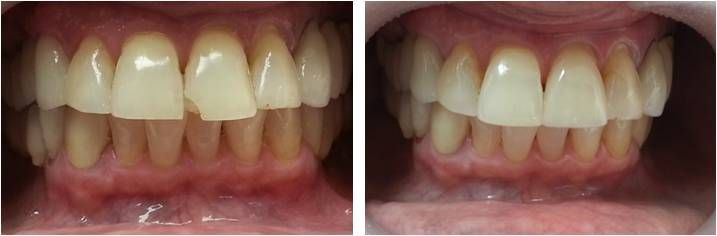 SINGLE APPOINTMENT PORCELAIN VENEERS CEREC ציפוי חרסינה תל אביב