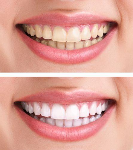 הלבנת שיניים בתל אביב- לפני ואחרי