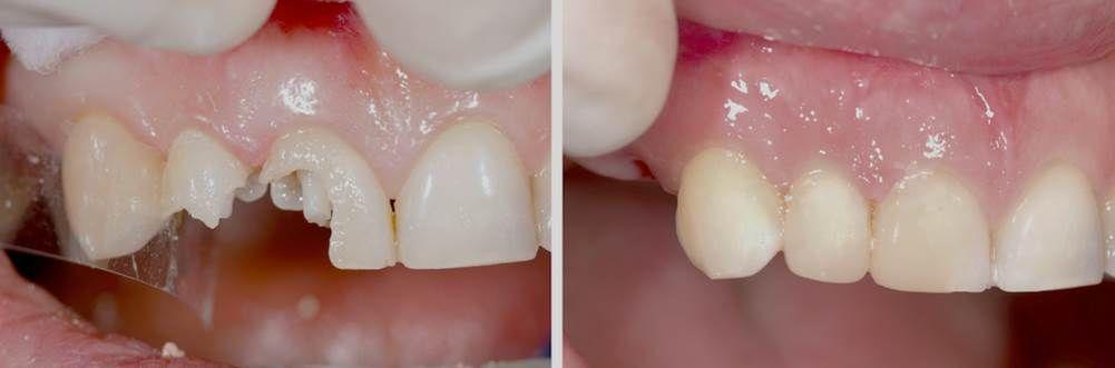 השלמת שן שבורה בתל אביב- לפני ואחרי