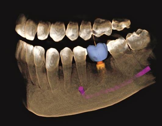 השתלה ממוחשבת שיניים תל אביב